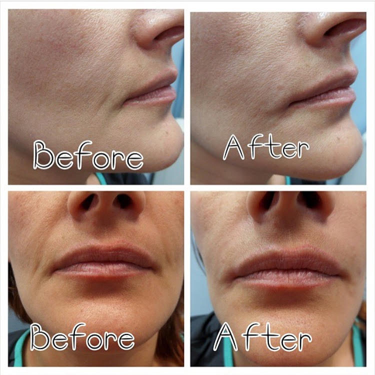before & after juvederm glendale ca