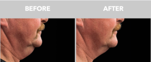 coolsculpting double chin removal CA