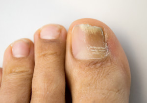 toenail fungus treatment glendale ca